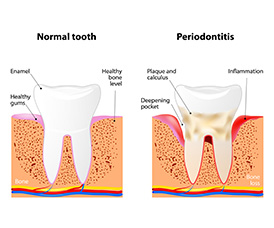 Periodontal Treatment Miami