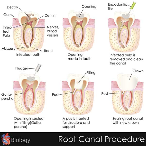 Root Canal Procedures