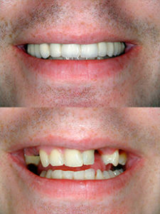 Porcelain Veneers Miami