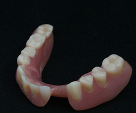 Partial Denture Restoration